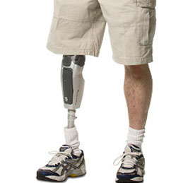 Sanitätshaus Pfänder Prothetik Knie-Ex-Prothesen